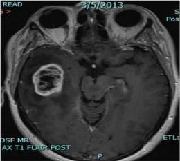 MRI Scan of Glioblastoma multiforme.