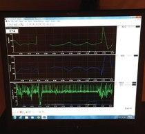 Autonomic Dysfunction Testing