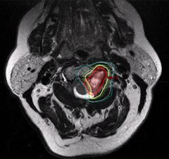 Figure 1: Axial slice of T2-weighted MRI. Planning treatment volume is highlighted in red. 100% isodose line delineating the area receiving the presciption dose is highlighted in yellow. Radiation dose is purposely sculpted around the spinal cord.