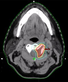 Figure 2: Axial CT slice of a tumor involving the cervical spine. Planning treatment volume is highlighted in red. 100% isodose line delineating the volume receiving the prescription dose is highlighted in yellow.
